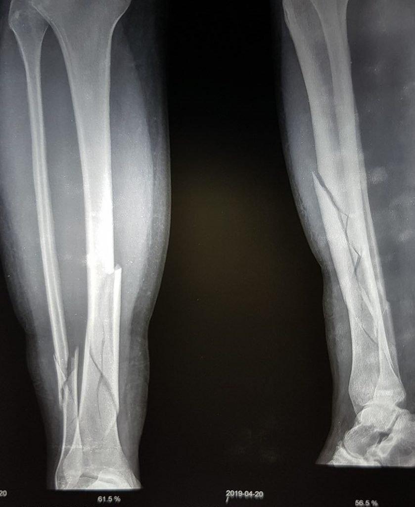 Broken leg in Nepal