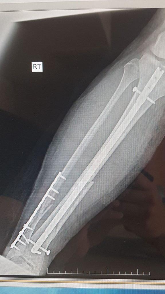 broken bones in Nepal