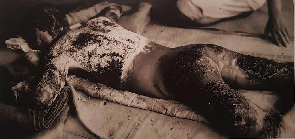 Hiroshima museum photograph of burns